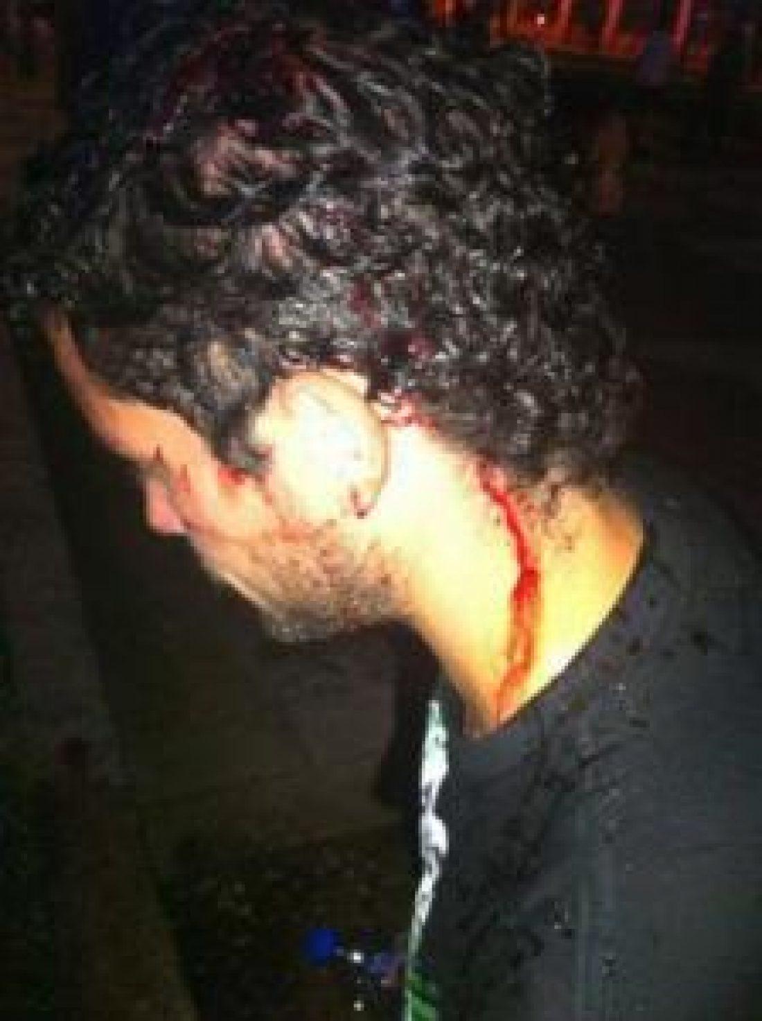Rueda de prensa ante la detención y brutal agresión a miembros de Baladre